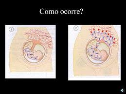 anemia-eristroblastose-fetal-04