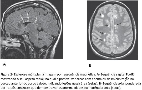 esclerose-multipla-2