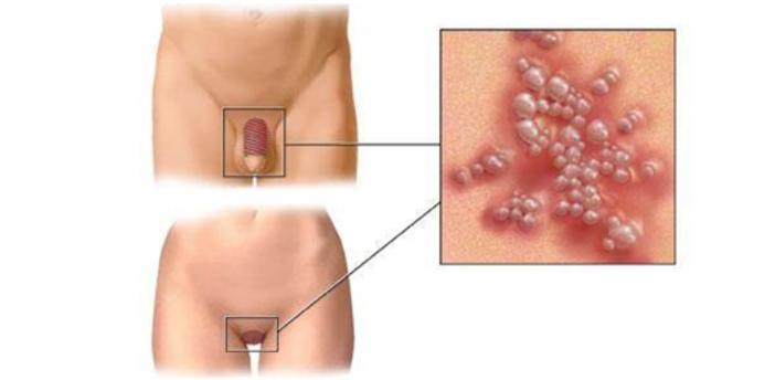 Herpes Genital